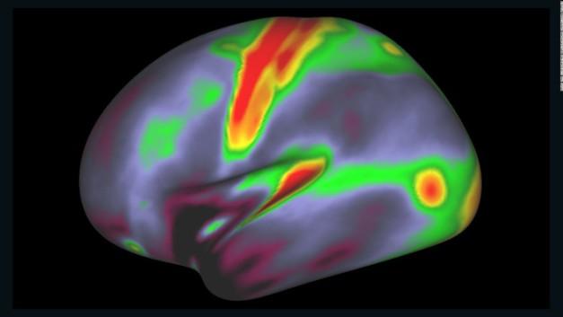 160718135222-01-new-brain-map-full-169