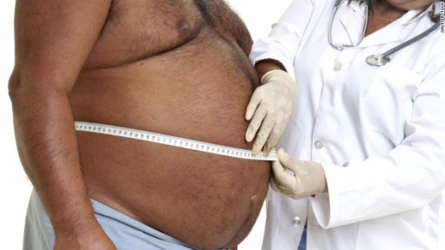 150917174733-obese-man-doctor-exlarge-169